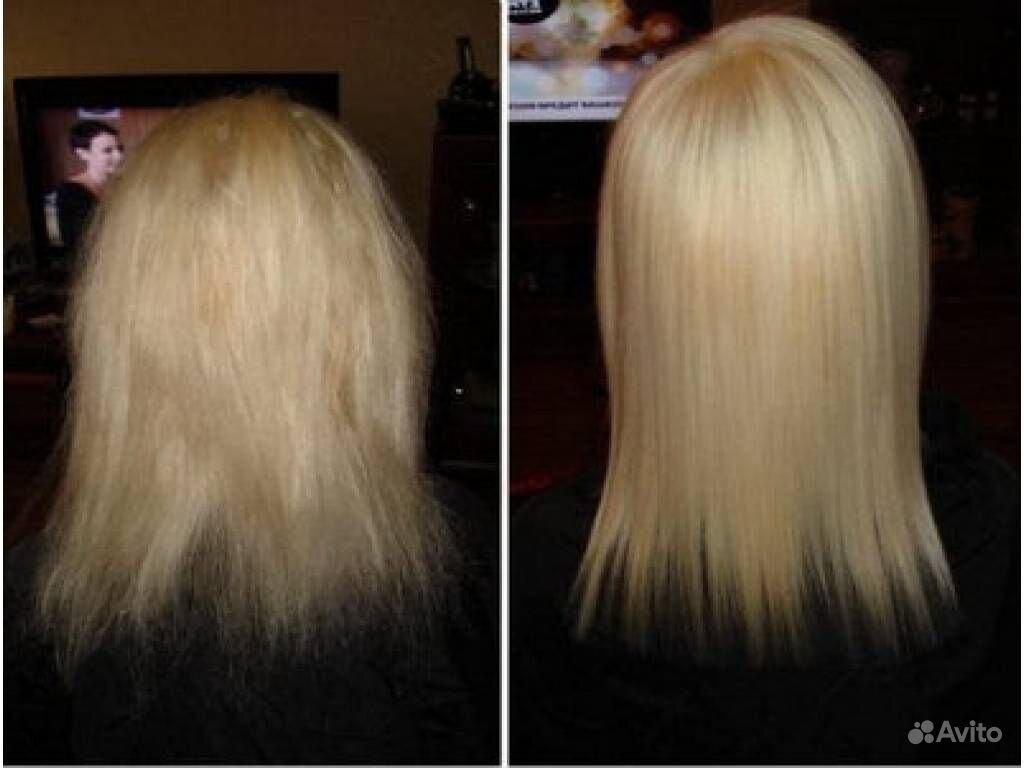 Почему когда бросаешь курить выпадают волосы