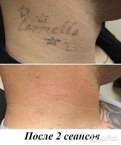 Удаление тату без шрамов
